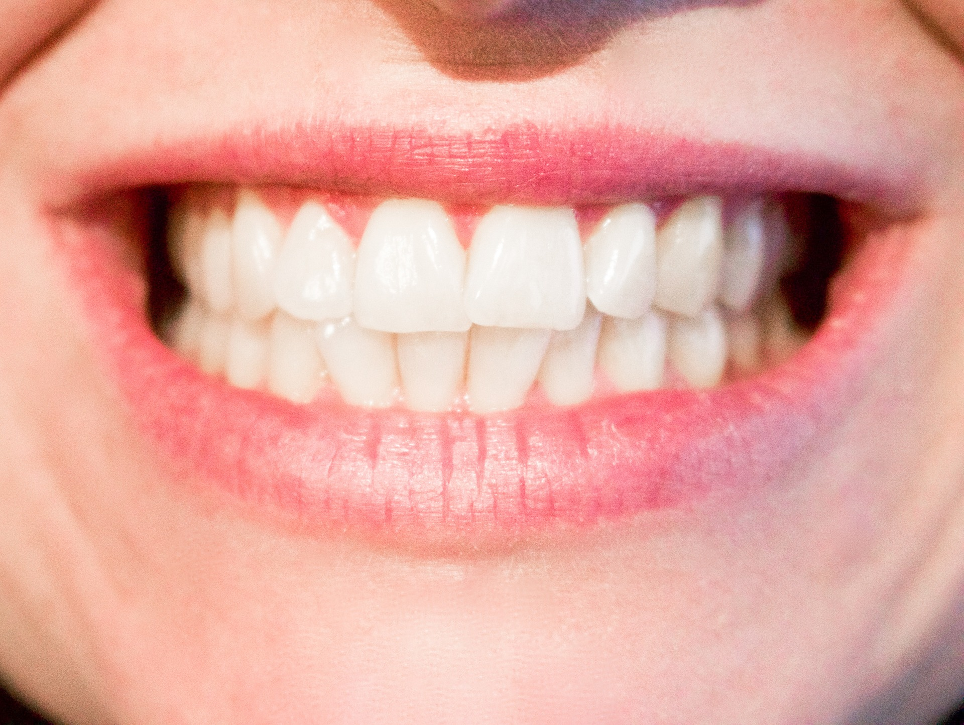 Close up of teeth smiling. There are certain dental hygiene habits that drive dental professionals insane.